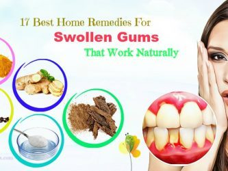 natural home remedies for swollen gums