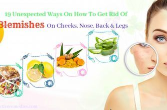 how to get rid of blemishes on cheeks