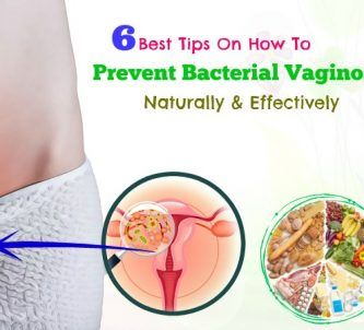 how to prevent bacterial vaginosis effectively