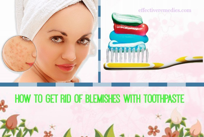 how to get rid of blemishes on back - toothpaste