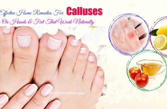 effective home remedies for calluses
