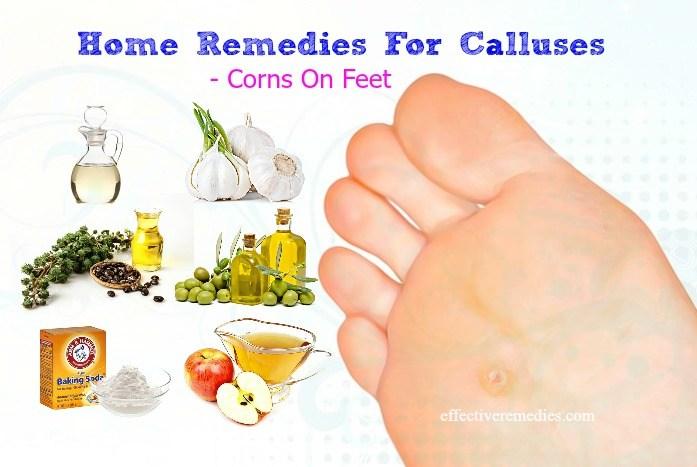 calluses & corns on feet