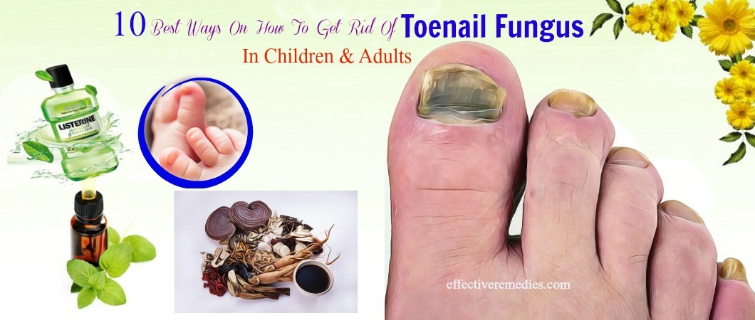 how to get rid of toenail fungus in children