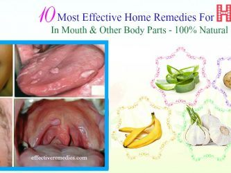 effective home remedies for hpv