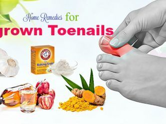 home remedies for ingrown toenails infection