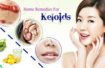 effective home remedies for keloids