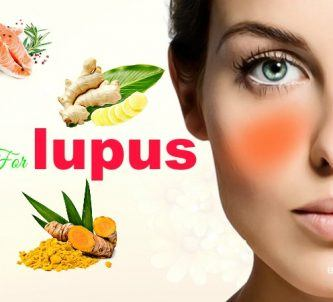 effective home remedies for lupus