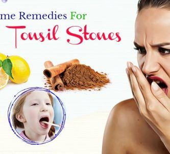 home remedies for tonsil stones and bad breath