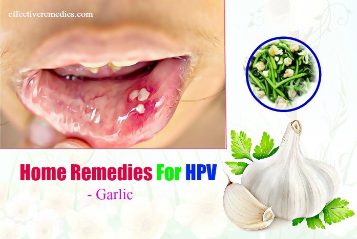 10 Effective Home Remedies For HPV In Mouth: 100% Natural & Safe