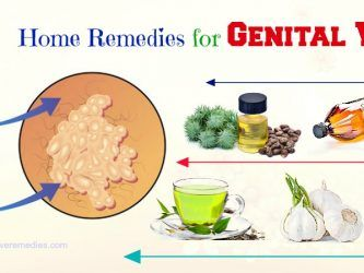home remedies for genital warts in males