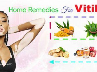 effective home remedies for vitiligo