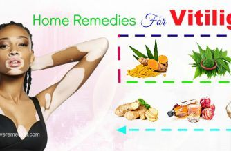 effective home remedies for vitiligo