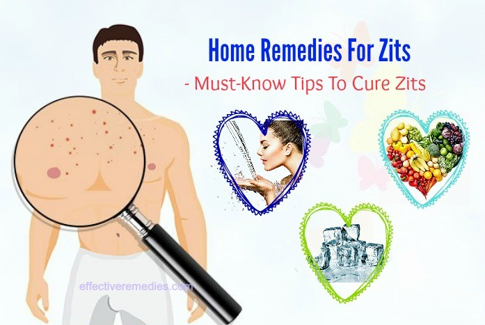 must-know tips to cure zits