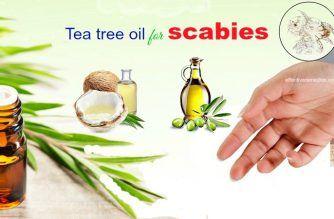 tea tree oil for scabies in kids