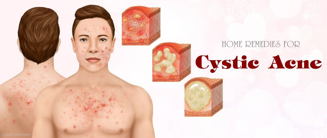 home remedies for cystic acne on face, nose, neck and while pregnant