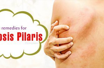 home remedies for keratosis pilaris on face