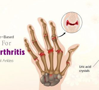 home remedies for rheumatoid arthritis relief in hands, fingers, knees, ankles
