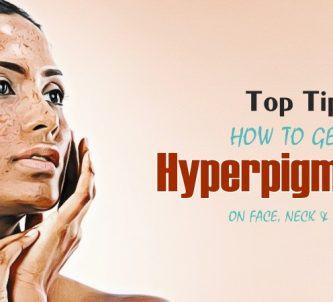 how to get rid of hyperpigmentation on face