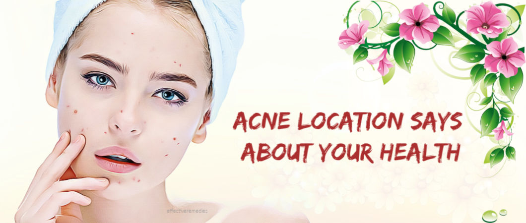 what your acne location says about your health and treatment