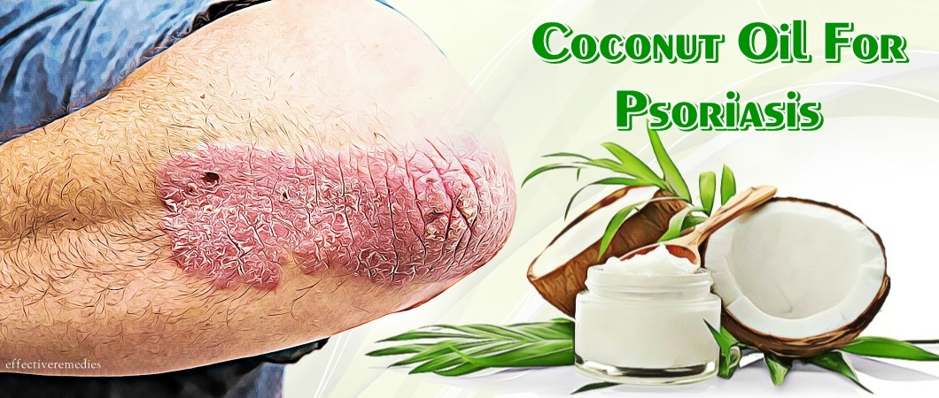 coconut oil for psoriasis on scalp