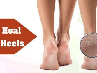 how to heal cracked heels naturally